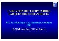 Ablation tachycardie..
