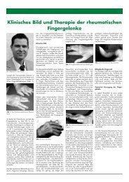 Klinisches Bild und Therapie der rheumatischen Fingergelenke