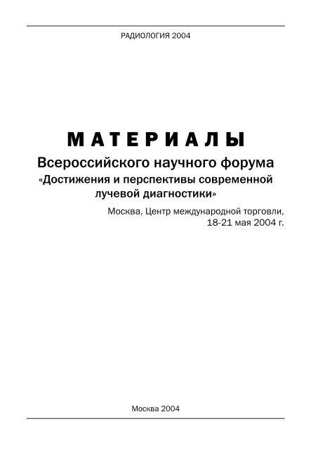 датчик у143 11 схема подключения
