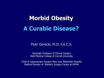 Morbid Obesity A Curable Disease? - Bariatric Surgery NYC