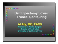 124 – Belt Lipectomy / Lower Truncal Contouring, Al Aly, MD, FACS