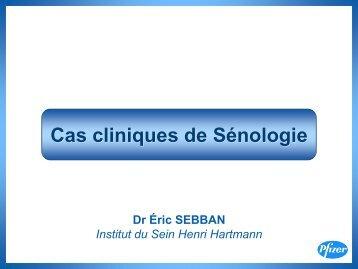 Cas cliniques de Sénologie