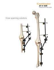 Knee spanning solutions - Osteosyntese