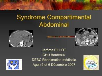 Syndrome de compartiment abdominal