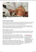 Laser proti chloupkům, žilkám i vráskám. Odstraní vady bez jizev ... - Page 3