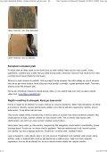 Laser proti chloupkům, žilkám i vráskám. Odstraní vady bez jizev ... - Page 4