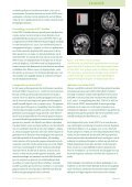 december 2011 - Nederlandse Liga tegen Epilepsie - Page 4