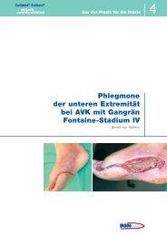 Phlegmone der unteren Extremität bei AVK mit ... - Cutimed Sorbact