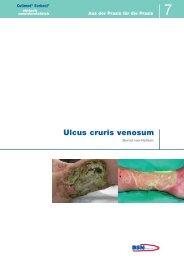 Ulcus cruris venosum - Cutimed Sorbact