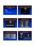 Vertebrobasilar Insufficiency - VascularWeb - Page 4