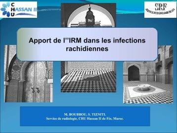 Apport de l''IRM dans les infections rachidiennes