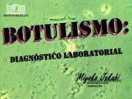 Botulismo: diagnóstico laboratorial