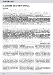 MALÍGNE TUMORY SRDCA - Onkologie