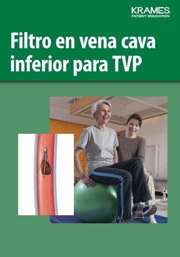 Filtro en vena cava inferior para TVP - Veterans Health Library