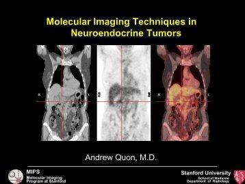 Molecular Imaging Techniques in Neuroendocrine Tumors