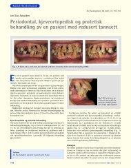 Periodontal, kjeveortopedisk og protetisk behandling av en pasient ...