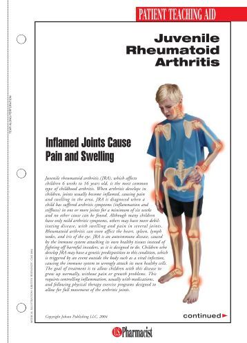arthritis thesis The chronic inflammation of rheumatoid arthritis begins in the synovium where an unknown event triggers for most people the bathtub works nearly as well.