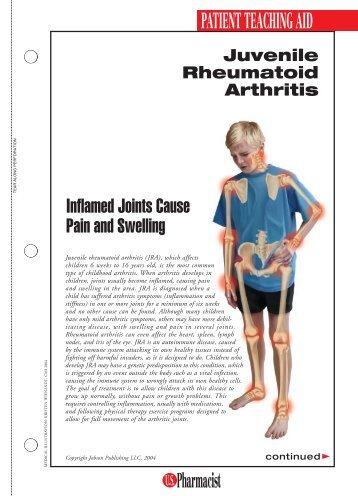Juvenile Rheumatoid Arthritis - US Pharmacist