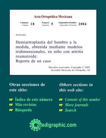 Hemiartroplastía del hombro a la medida, obtenida ... - edigraphic.com