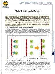 Alpha-1-Antitrypsin-Mangel - LOT