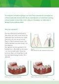 Implantaten - Mca - Page 3