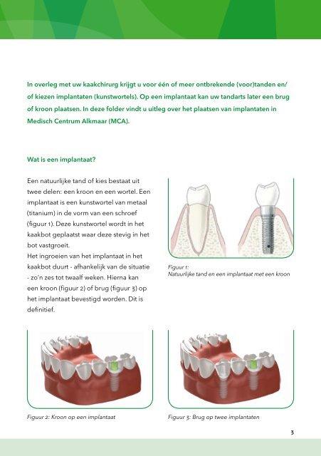 Implantaten - Mca