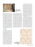 Der Einfluß der Kopfgelenke und / oder der Kiefergelenke auf die - Page 3