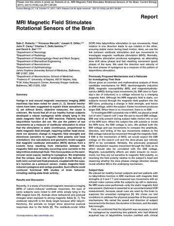 MRI Magnetic Field Stimulates Rotational Sensors of the Brain