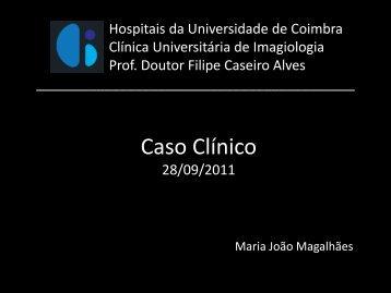 Ganglioneuromatose intestinal - Hospitais da Universidade de ...