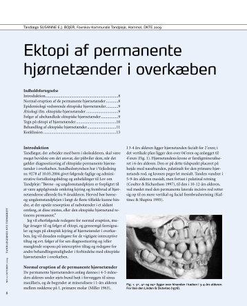 DKTE -rapport: Ektopi af permanente hjørnetænder i overkæben