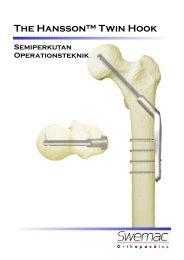 (OP-teknik broschyr twin hook 135 4h\345l SVE.pub) - Osteosyntese