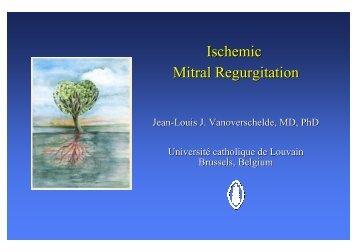 Ischemic Mitral Regurgitation - Cardiologie-francophone