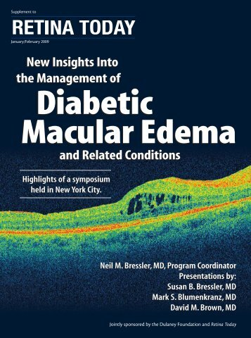 Diabetic Macular Edema - Retina Today