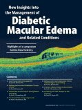 Diabetic Macular Edema - Retina Today - Page 3