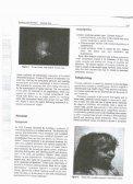 Crouzon syndrome - Atlanta Plastic Surgery, PC - Page 3