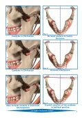 Articulating and Occlusion Test Materials - Janouch Dental - Page 5