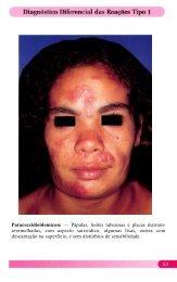 Paracoccidioidomicose — Pápulas, lesões tuberosas e placas marrom
