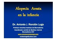 Alopecia areata derm Pediatrica - Antonio Rondón Lugo