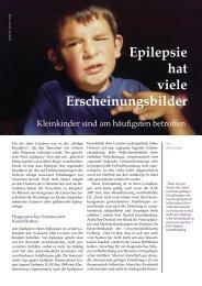 Epilepsie hat viele Erscheinungsbilder