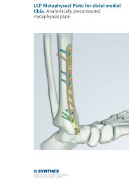 LCP Metaphyseal Plate for distal medial tibia ... - Osteosyntese