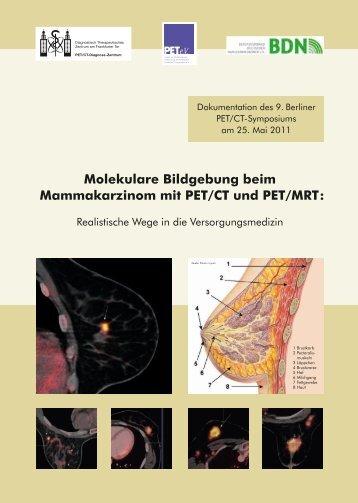 Molekulare Bildgebung beim Mammakarzinom mit PET ... - DTZ Berlin