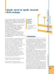 Quale stent in quale stenosi dell'esofago - Sied