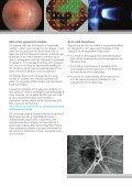 Postgraduate Glaucoma Module - contentlibrary - The University of ... - Page 2