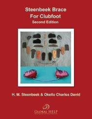 Steenbeek Brace For Clubfoot [2nd Edition] - Global HELP