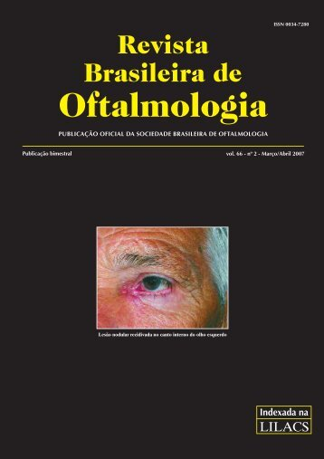 Mar-Abr - Sociedade Brasileira de Oftalmologia