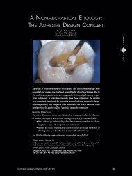 the adhesive design concept
