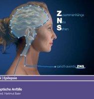 Epilepsie Epileptische Anfälle - Epilepsie-Zentrum Bodensee