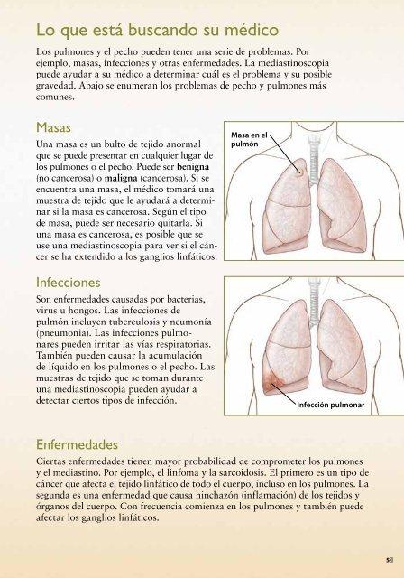 liquido en los pulmones gravedad