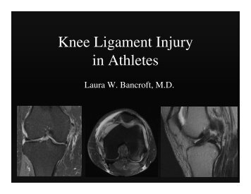 Knee Ligament Injury in Athletes
