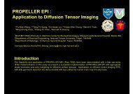 PROPELLER EPI : Application to Diffusion Tensor Imaging